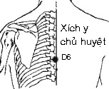 Introduction Acupuncture